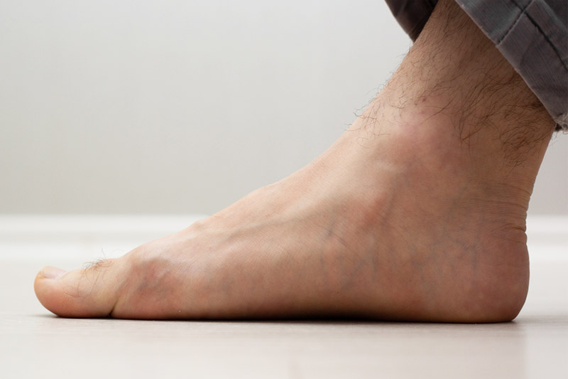 how flat feet affect your posture